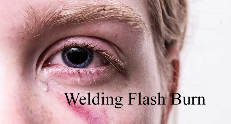 Corneal Flash Burn