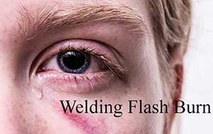 Welding Eye Burn - Why Do Eyes Hurt After Welding & What To Do?
